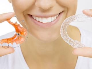 Modne aparaty ortodontyczne.