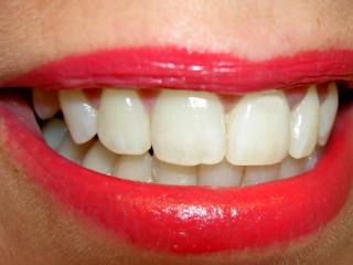 Wybielanie zębów.